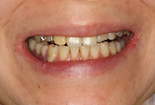アセタルクラスプ義歯(白いバネ)\130000~ のイメージ