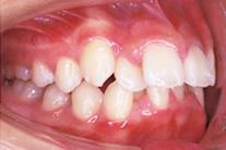 前歯は出ている のイメージ