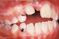 生えていない歯がある のイメージ